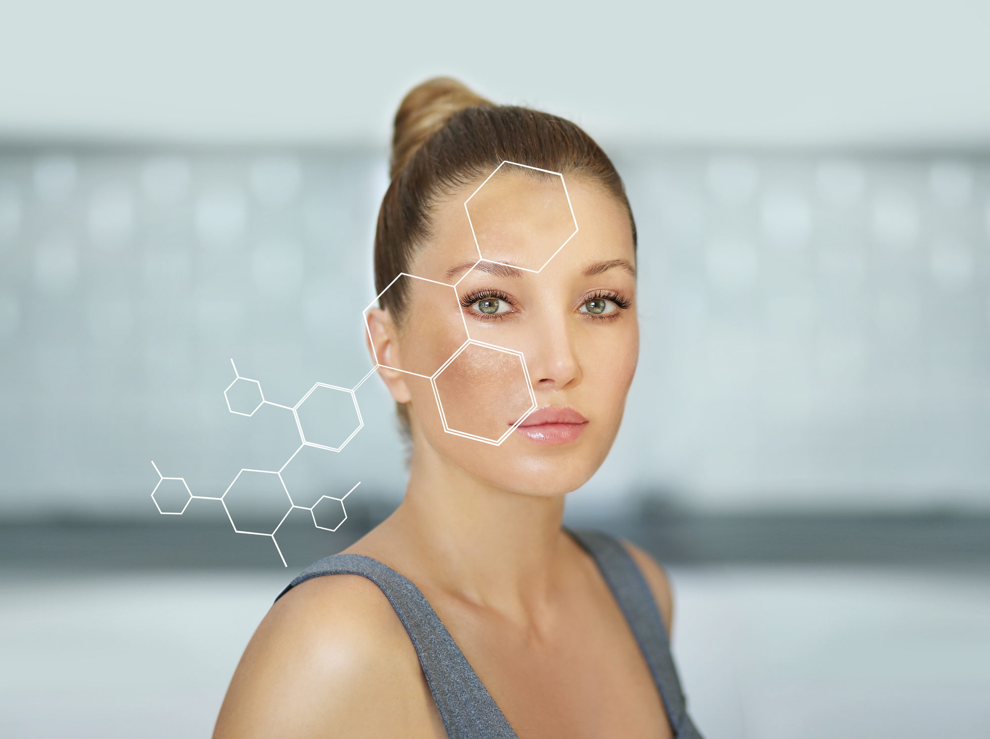 Woman with dark spots and hyperpigmentation, Glytone Jessner Medical Peel