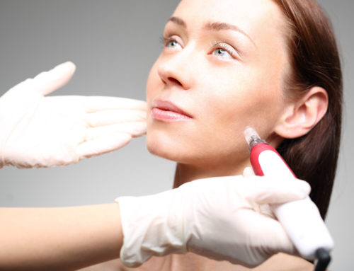What's So Special About RF Micro-Needling?