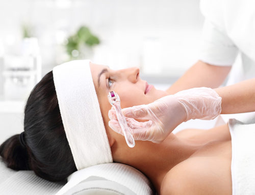 Anti-Aging Treatment at its Finest: Vivace Microneedling
